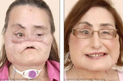 美国首例换脸术患者重获新生