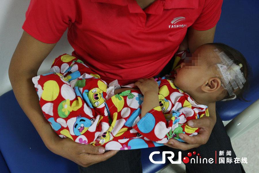 重庆一岁半女童乳房发育如少女高清组图 儿童