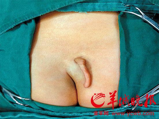 11种女性易生畸形儿图