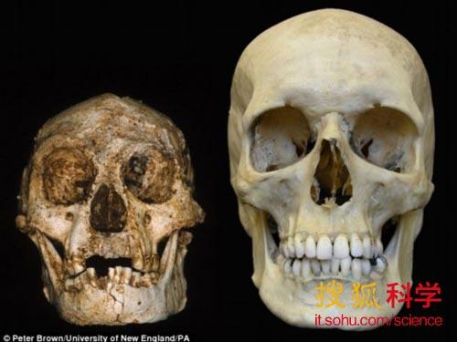 儿童头骨结构图