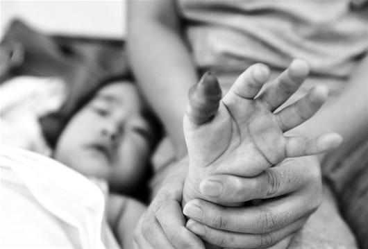 橡皮筋套在手上三天出现肿胀发紫 四岁女童险